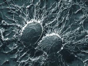Le bicarbonate de soude est-il désinfectant ou bactéricide ? Illustration Staphylocoque doré